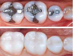 447940-before-and-after-composite-fillings