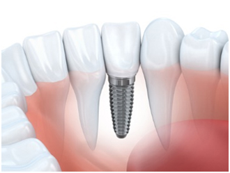 The Benefits of Dental Implants